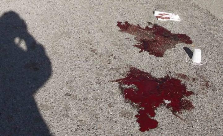 Napoli, agguato al rione Sanità: ferito gravemente un 43enne