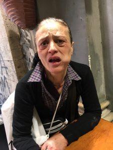 Barbona vittima di baby gang a Napoli, aiutatemi