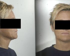 Terni-La-rapinatrice-arrestata