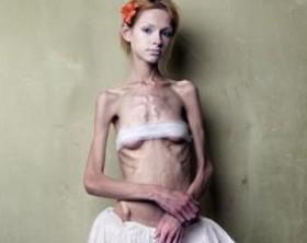 anorexia1-gif