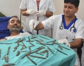 Ex poliziotto, i coltelli che aveva ingerito ed il chirurgo che l'ha salvato.