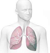fibrosi-polmonare-2