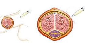 tiroide-agoaspirato