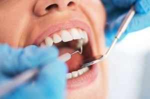 dentista-bocca