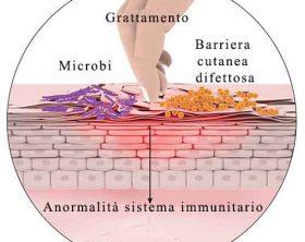 dermatite-atopica-cause-difetto-barriera-grattamento-prurito