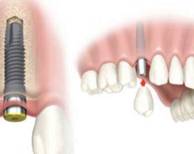 implantologia1-620x350