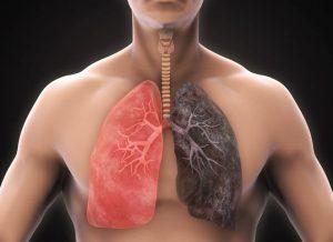 fumo-danno-polmoni_thumb_720_480