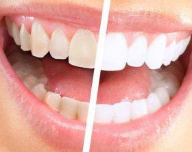sbiancamento-professionale-denti